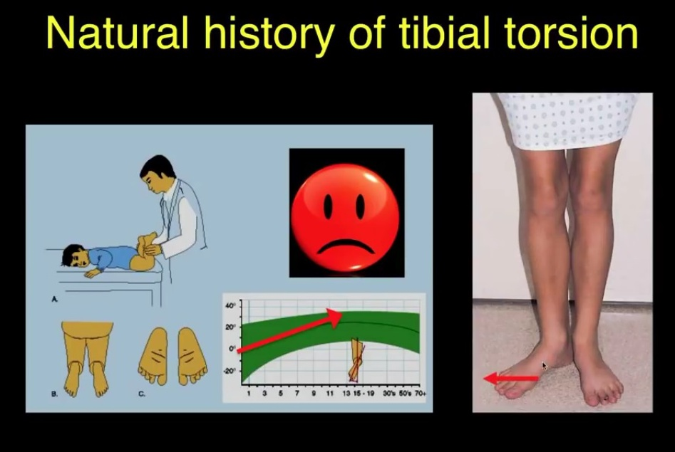 External Tibial Torsion by Prof Lynn Staheli