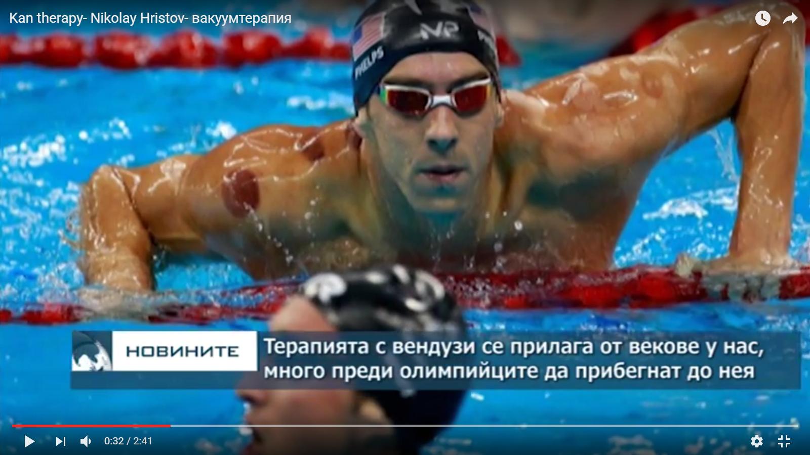 Кан Терапия - Николай Христов - Вакуум терапия