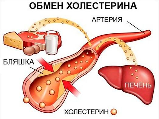 Холестерол: Причини и средства за лечение на висок холестерол