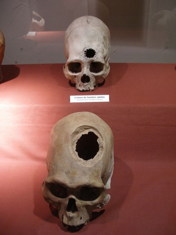 Древните българи правели мозъчни операции1