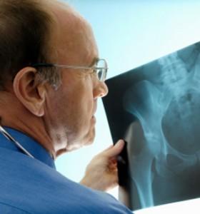 Остеомалация - на костите