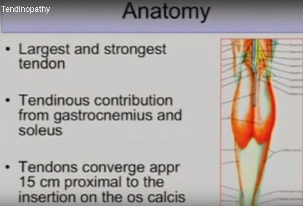 Achilles-tendinopathy
