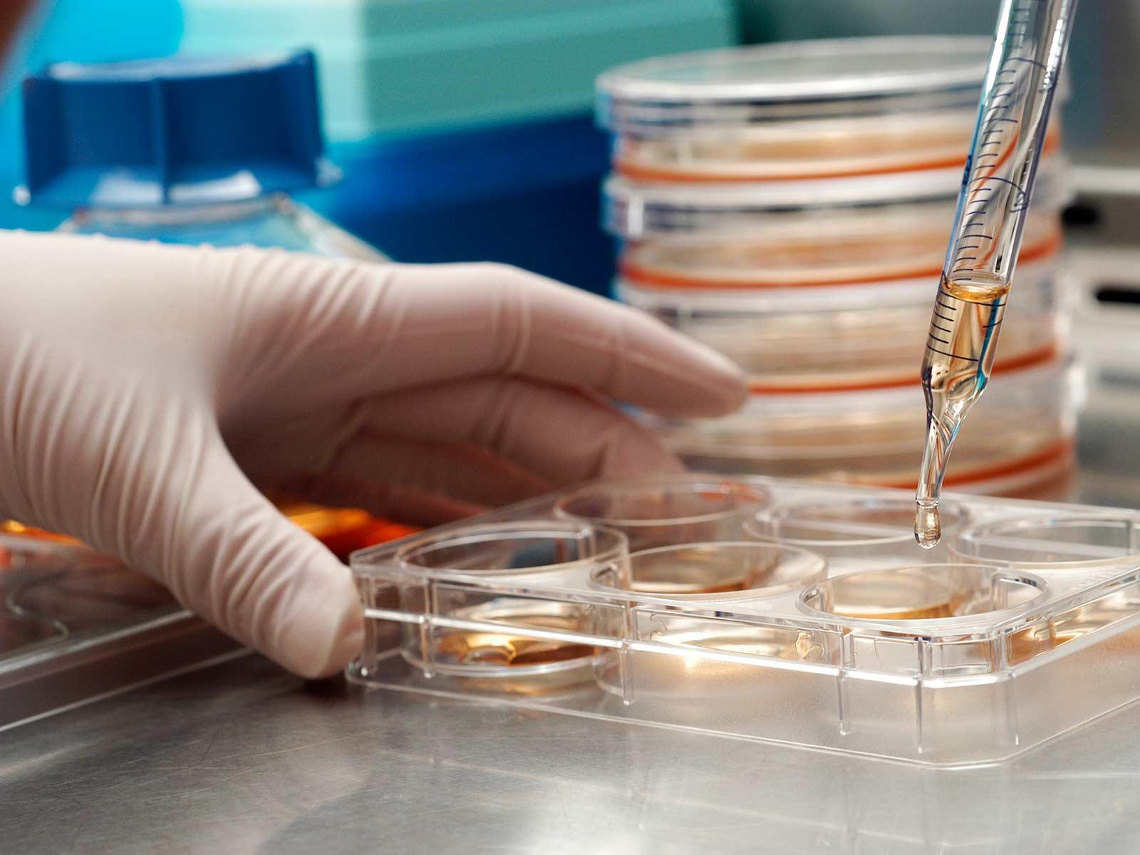 Стволовите клетки и тяхното приложение в медицината
