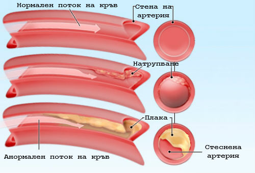 Резултат с изображение за холестерол