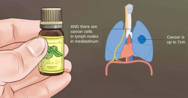 Истината за рака и етеричните масла от първа ръка, която НИКОЙ онколог няма да ви разкрие